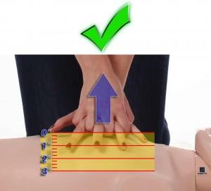 Right chest compressions