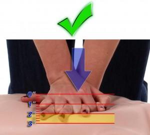 Right compressions