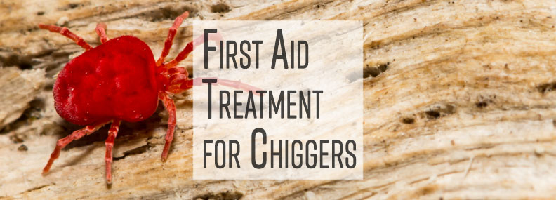 First Aid Treatment for Chiggers