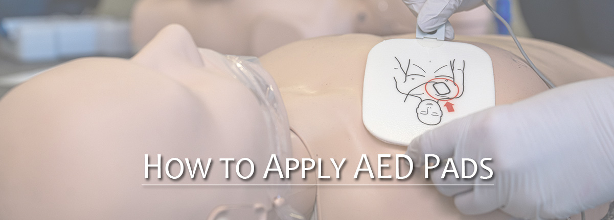 AED Pad Placement Tips